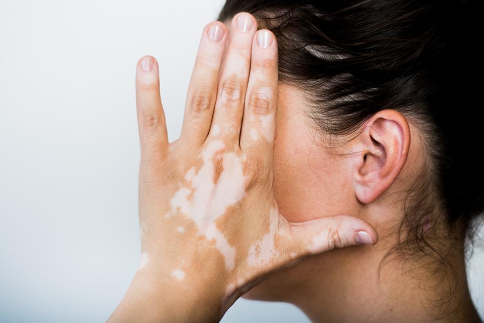 Penyakit Kulit Vitiligo